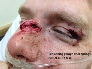garage door spring injury